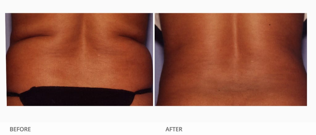 Before & After Body Contour