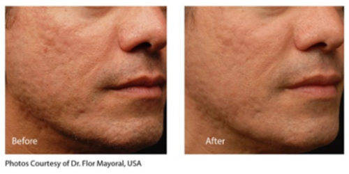 infini before and after-acne1
