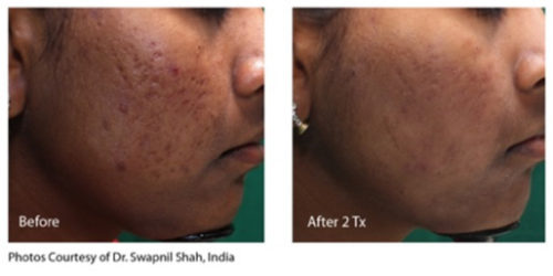 infini before and after-acne2