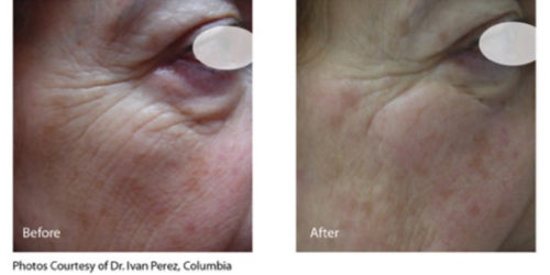 infini before and after-wrinkles1