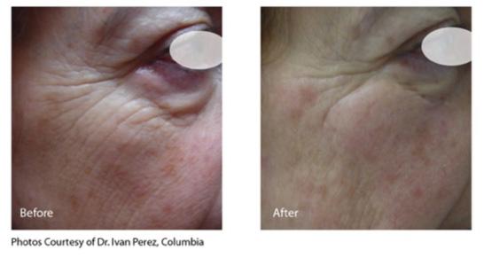 infini u2122 skin tightening treatment