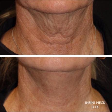 Infini™ Skin Tightening Treatment | Laronn Clinique