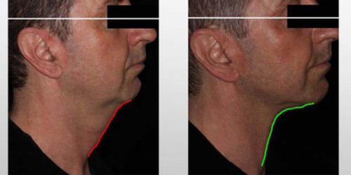 Infini Skin Tightening Treatment Laronn Clinique