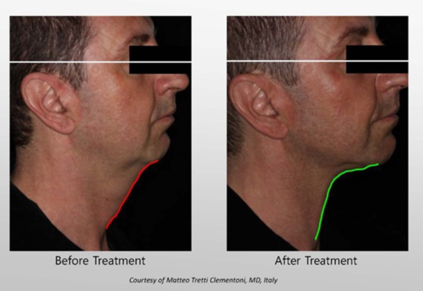 Infini™ Skin Tightening Treatment | Laronn Clinique
