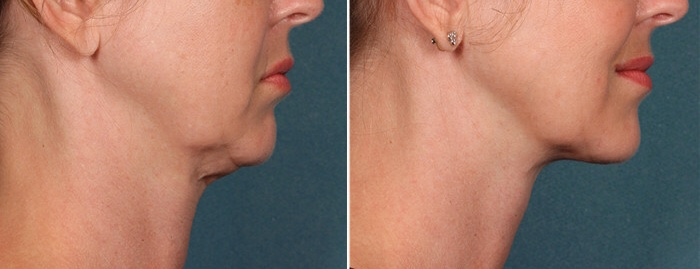 KYBELLA, Best Non-Surgical Double Chin & Neck Treatment